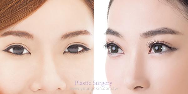 全開式雙眼皮手術、泡泡眼、眼皮抽脂、眼皮下垂、整形