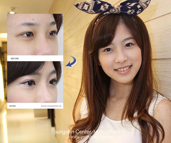 麻豆卡卡割雙眼皮手術打造森林系美少女