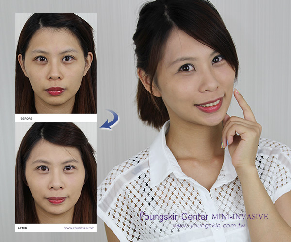 玻尿酸微調臉型塑造飽滿柔和輪廓