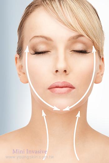 絲線拉提術、醫學美容、微整形、整形、拉皮