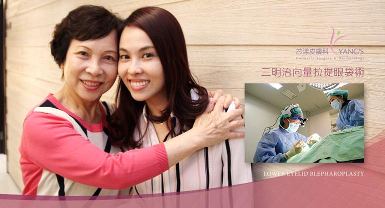 3D蘋果肌眼袋手術,讓媽媽再年輕一次,蘋果肌復位、法令紋、淚溝、眼周皺紋、眼皮下垂